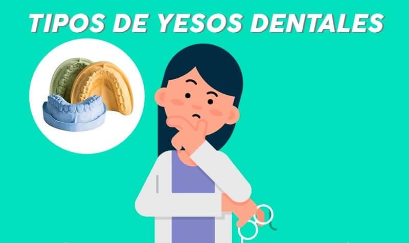 tipos de yesos dentales